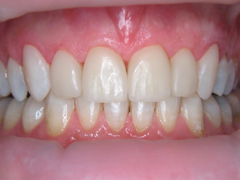 Zuby vybělené a ošetřené keramickými fazetami a bílými výplněmi