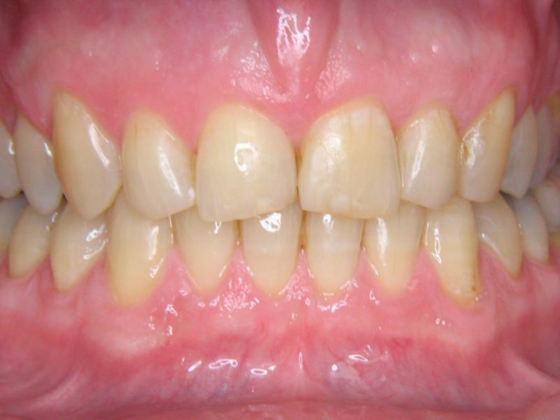 Zuby nevybělené s poškozeným tvarem a funkcí