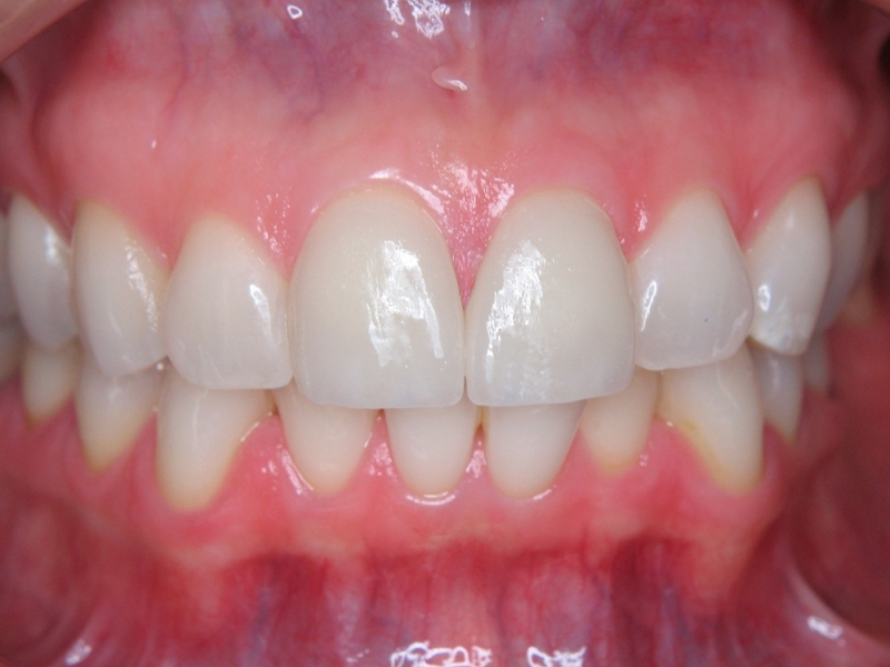 Zuby vybělené a ošetřené keramickými fazetami
