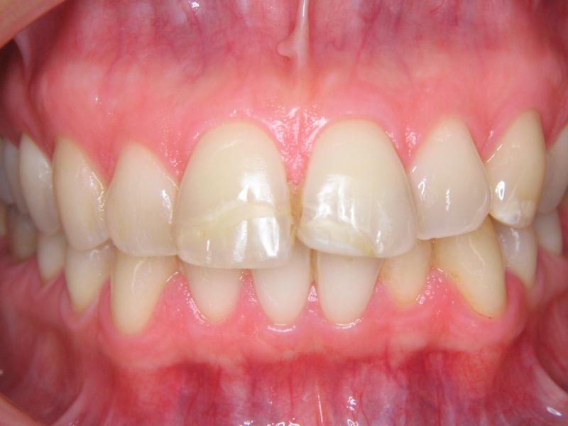 Zuby nevybělené, stav po ulomení kousacích hran