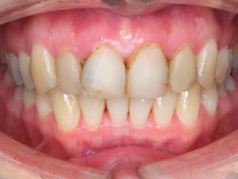 Zuby nevybělené a staré nevyhovující bílé výplně