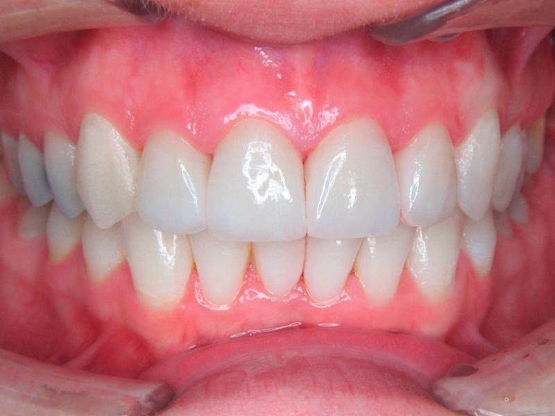 Zuby vybělené a ošetřené celokeramickými korunkami
