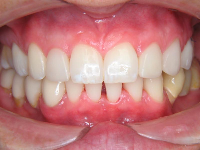 Zuby vybělené a ošetření horní čelisti kombinací keramických fazet, korunek a bílých výplní