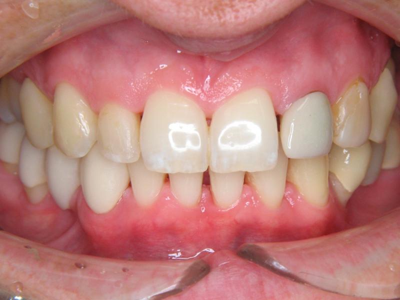 Zuby nevybělené, před estetickým ošetřením horní čelisti
