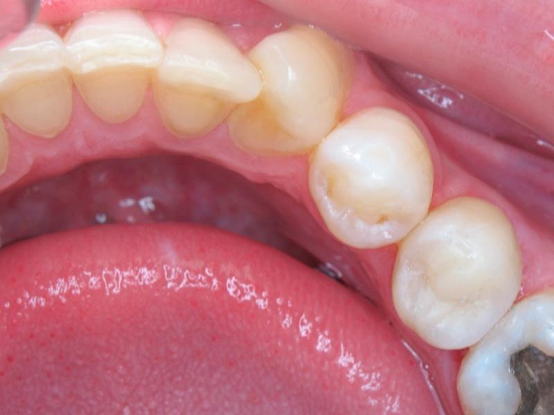 Ošetřený zub po sejmutí gumové blány (kofrdamu)