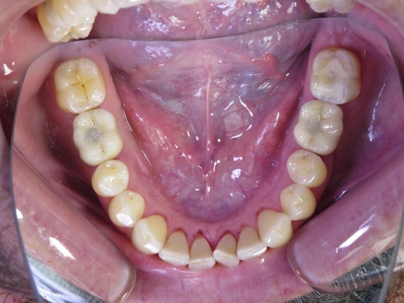Osazené implantáty korunkami s provizorními výplněmi v montážním otvoru