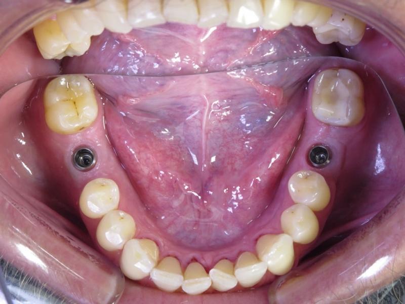 Vhojené implantáty