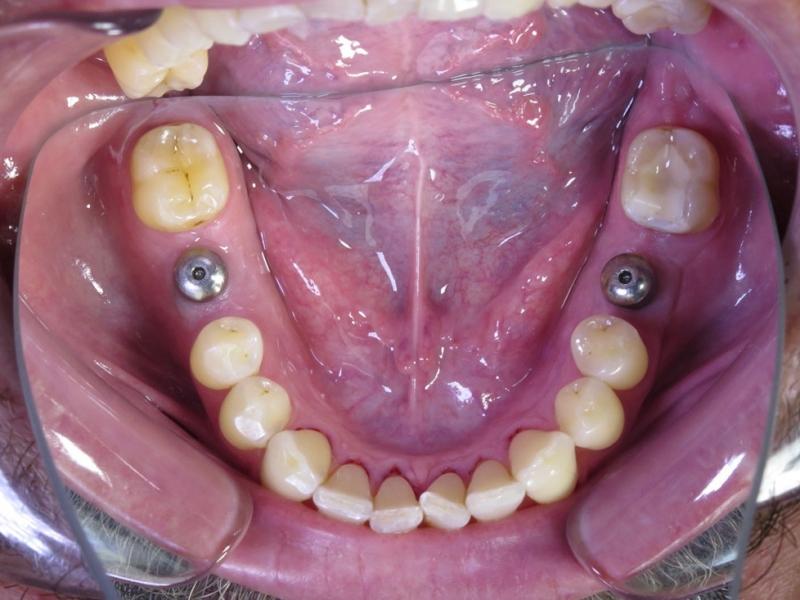 Vhojování implantátů s vhojovacími válečky